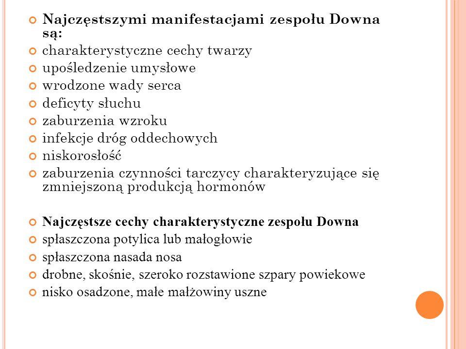 Najczęstszymi manifestacjami zespołu Downa są:
