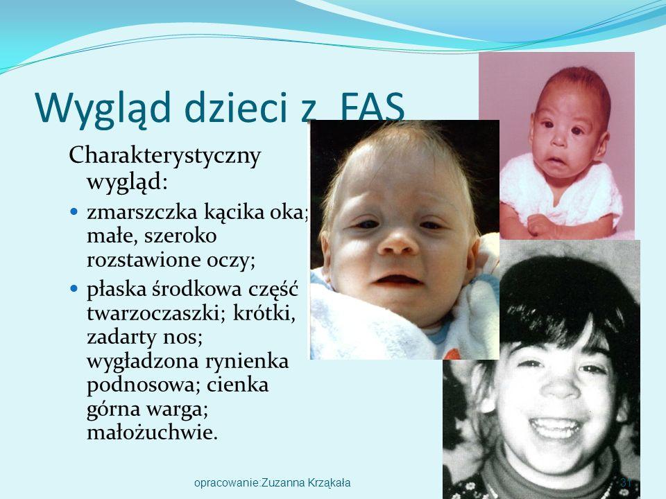 Wygląd dzieci z FAS Charakterystyczny wygląd:
