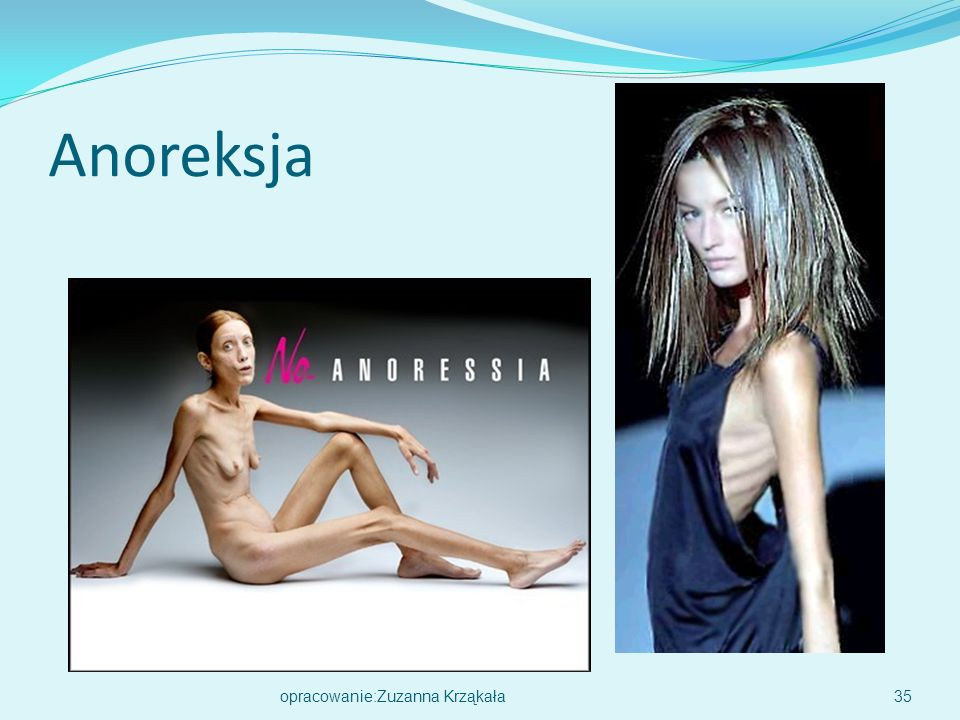 Anoreksja opracowanie:Zuzanna Krząkała