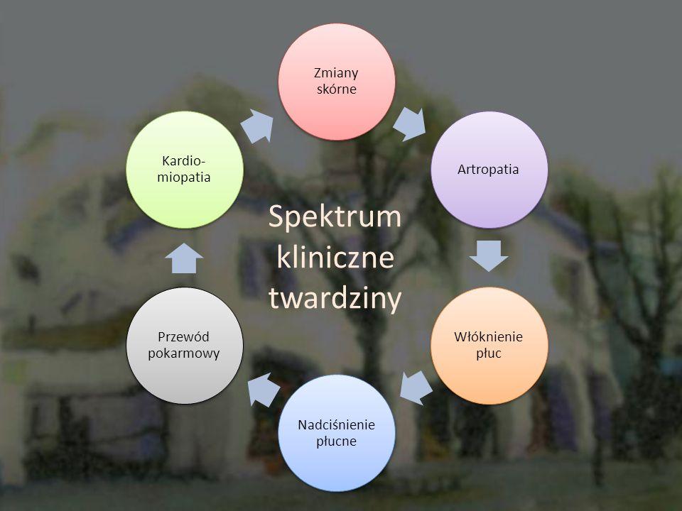 Spektrum kliniczne twardziny