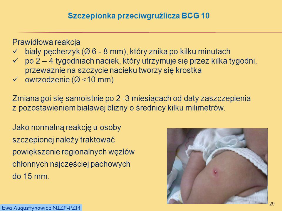 Szczepionka przeciwgruźlicza BCG 10