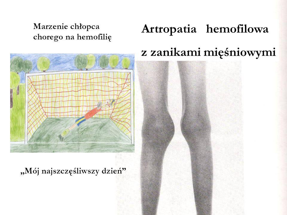 """Artropatia hemofilowa """"Mój najszczęśliwszy dzień"""