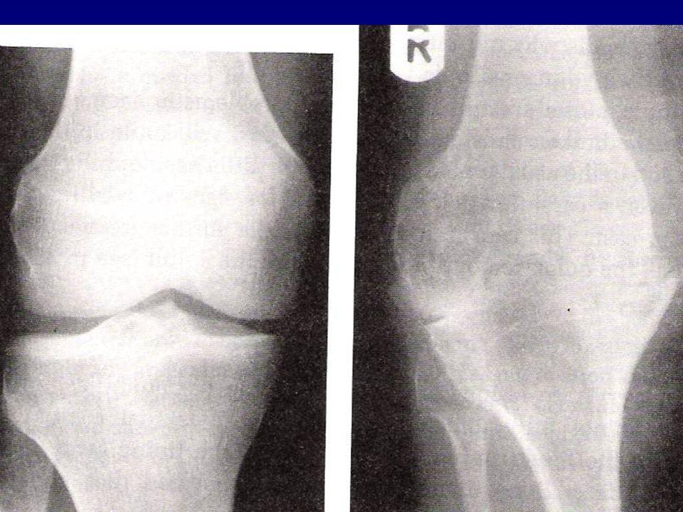 Prawidłowy staw kolanowy Staw kolanowy chorego na