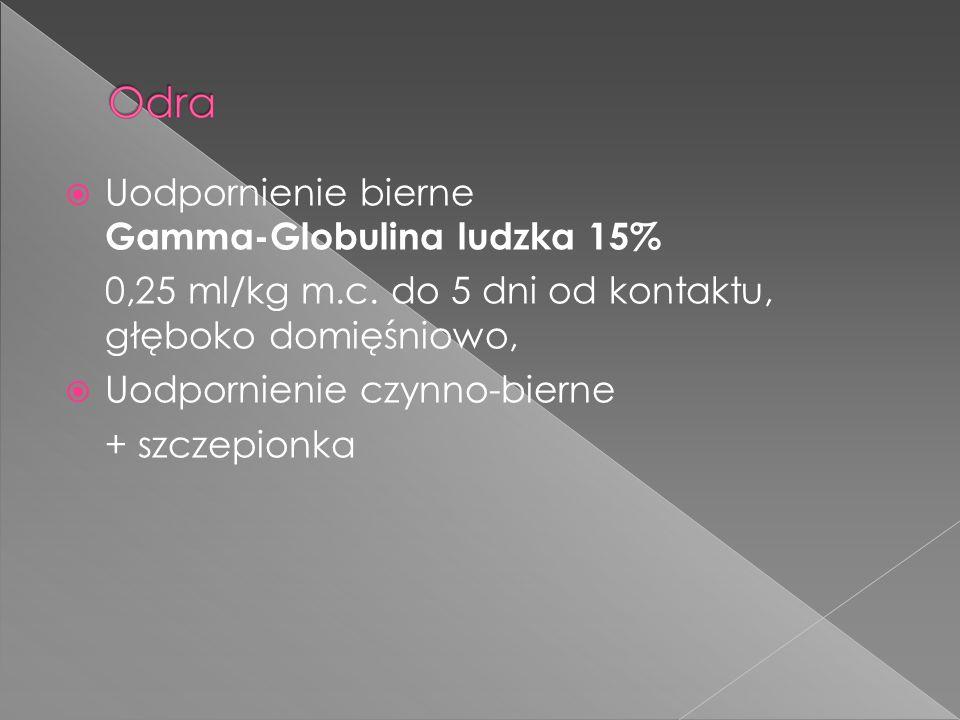 Uodpornienie bierne Gamma-Globulina ludzka 15%