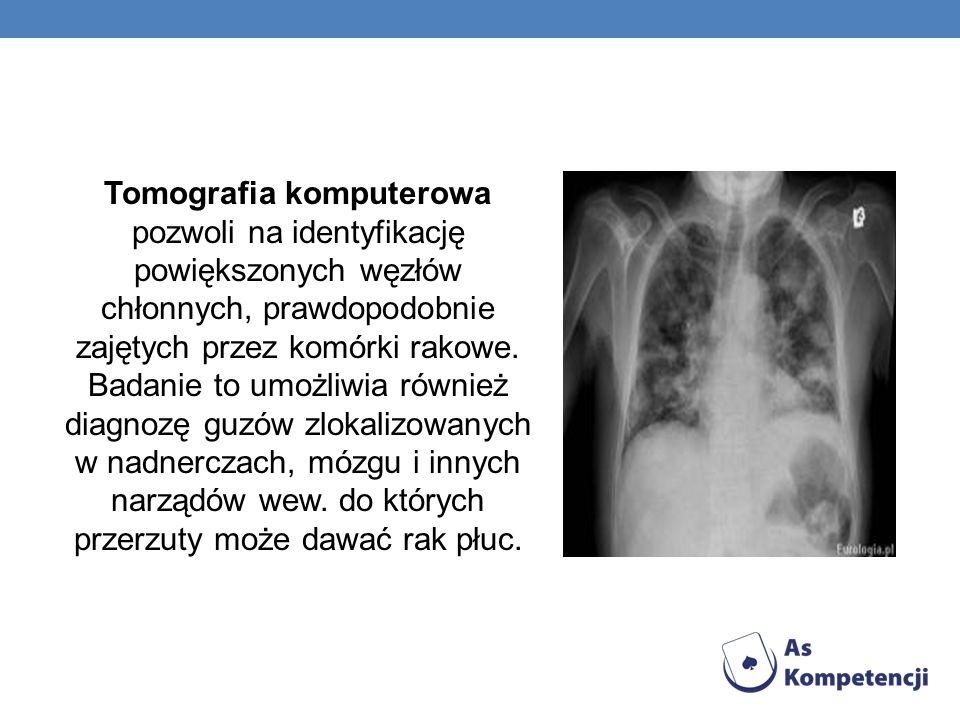 Tomografia komputerowa pozwoli na identyfikację powiększonych węzłów chłonnych, prawdopodobnie zajętych przez komórki rakowe.