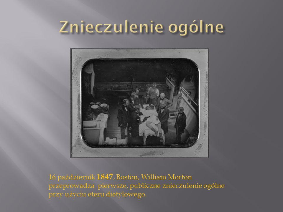 Znieczulenie ogólne 16 październik 1847, Boston, William Morton przeprowadza pierwsze, publiczne znieczulenie ogólne przy użyciu eteru dietylowego.