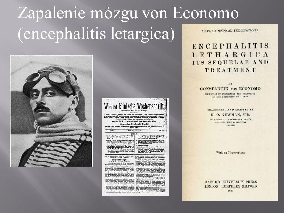 Zapalenie mózgu von Economo (encephalitis letargica)