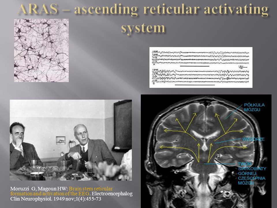 ARAS – ascending reticular activating system