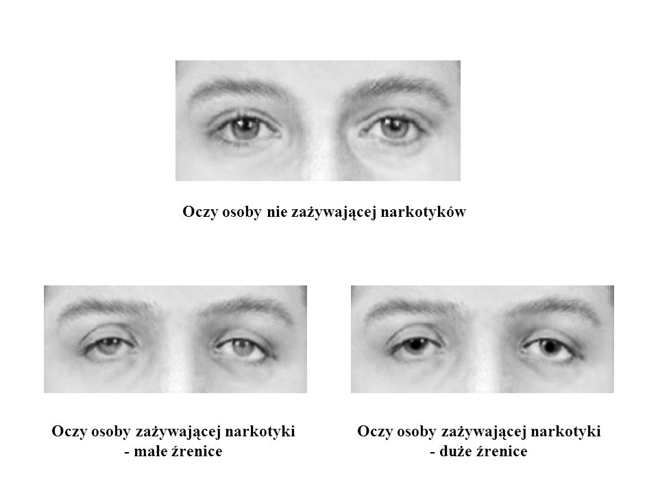 Oczy osoby zażywającej narkotyki Oczy osoby zażywającej narkotyki