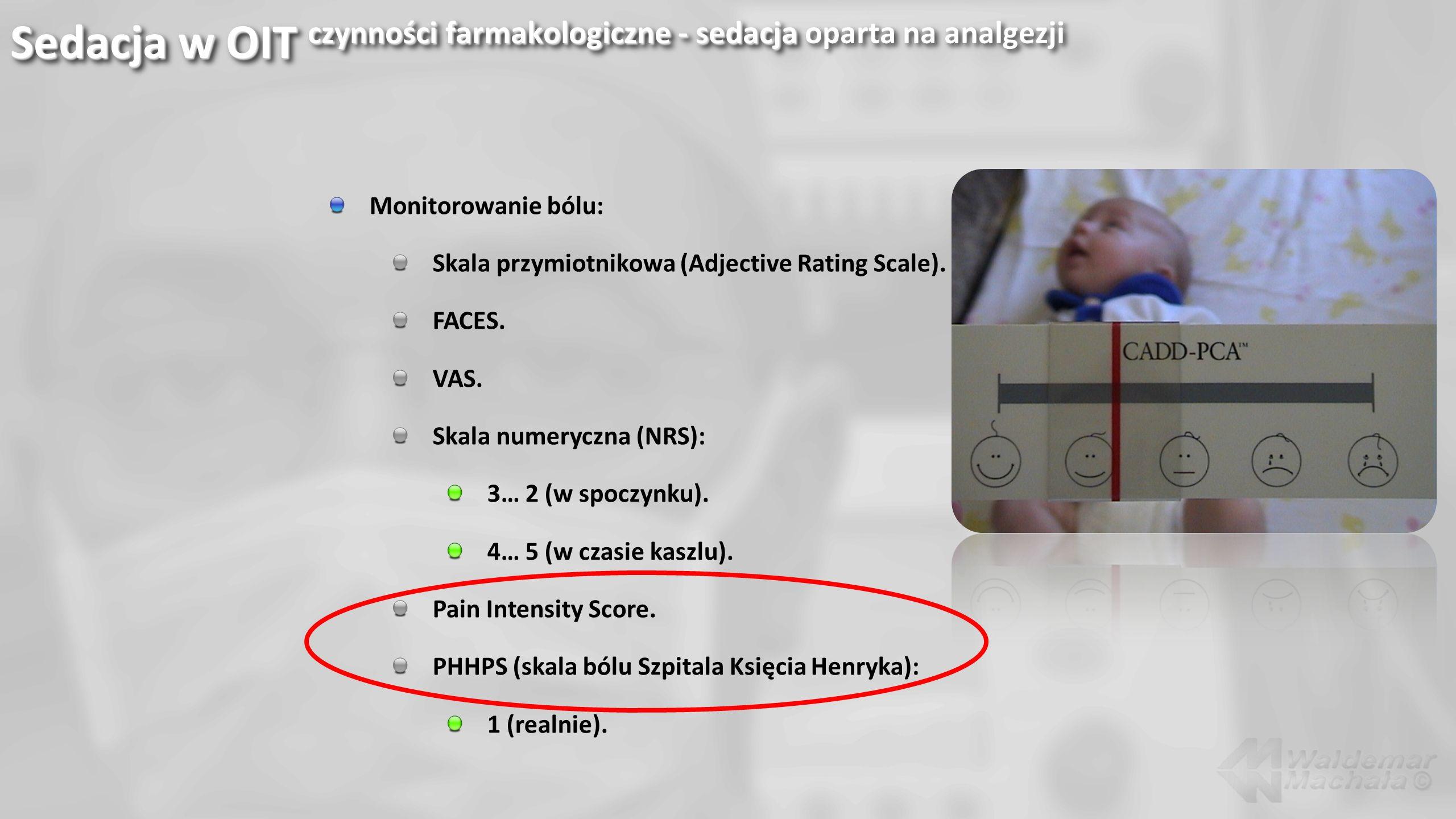 Sedacja w OIT czynności farmakologiczne - sedacja oparta na analgezji