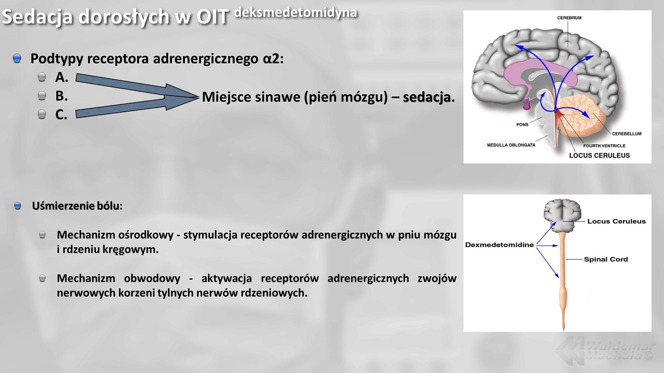 Sedacja dorosłych w OIT deksmedetomidyna