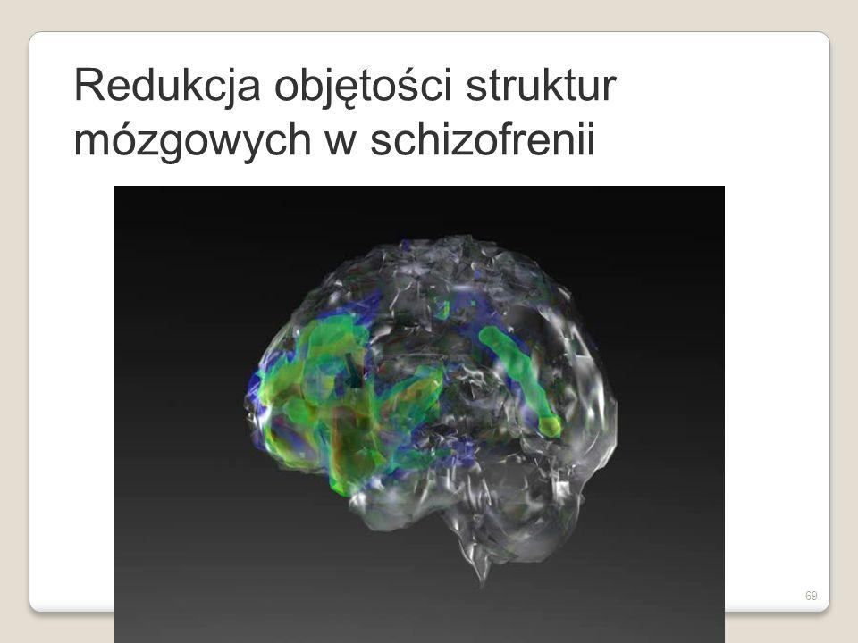 Redukcja objętości struktur mózgowych w schizofrenii