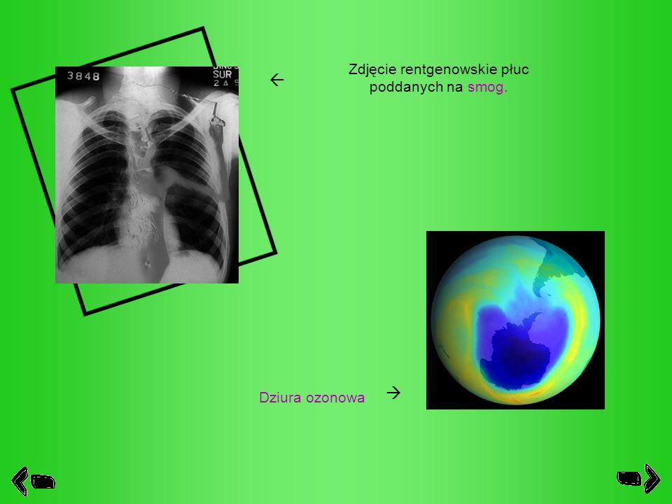 Zdjęcie rentgenowskie płuc poddanych na smog.