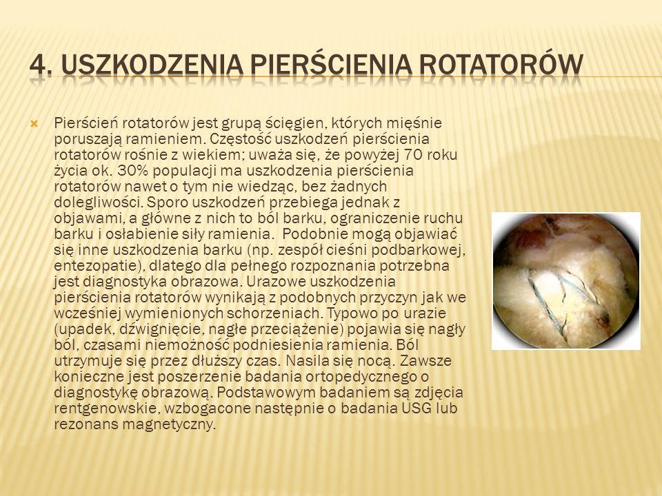 4. Uszkodzenia pierścienia rotatorów