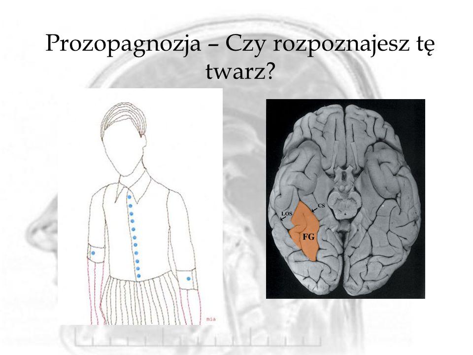 Prozopagnozja – Czy rozpoznajesz tę twarz