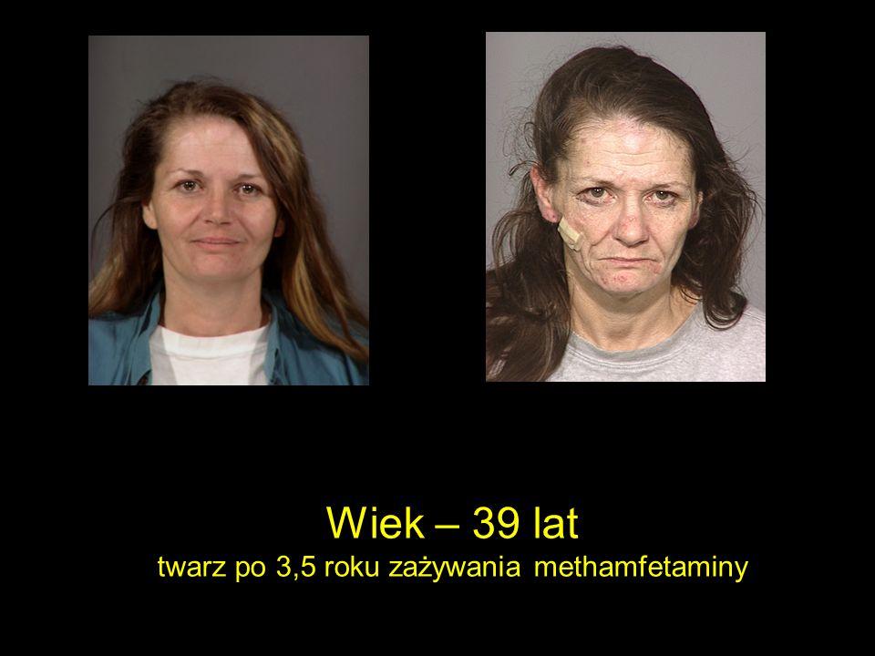 twarz po 3,5 roku zażywania methamfetaminy