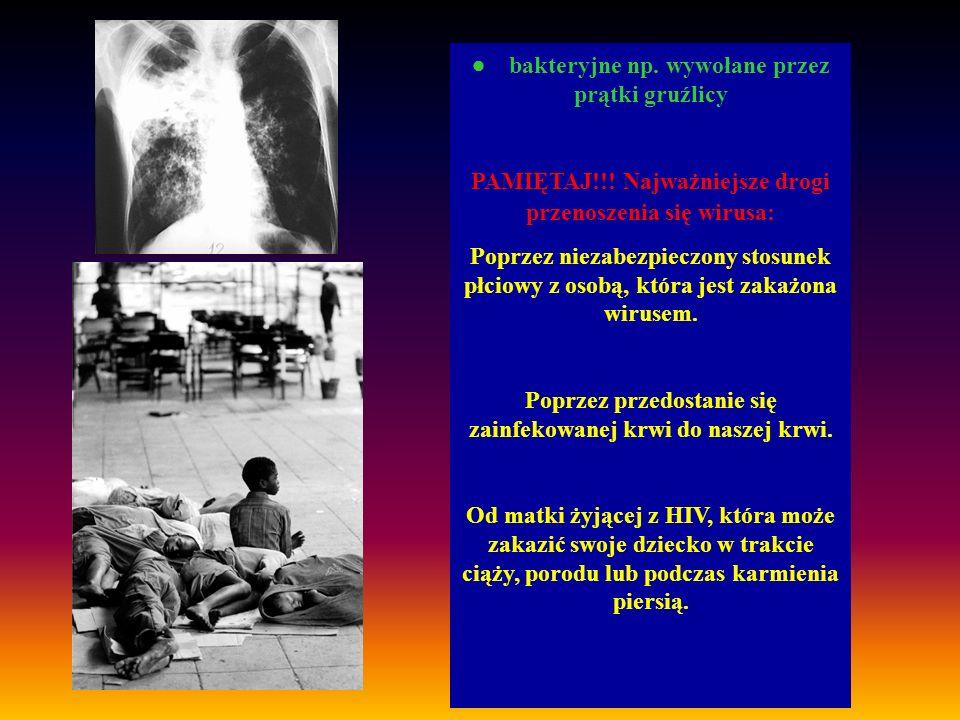· bakteryjne np. wywołane przez prątki gruźlicy