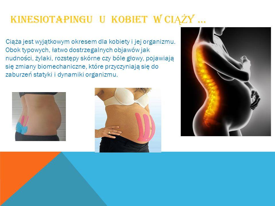 kinesiotapingu u kobiet w ciąży …