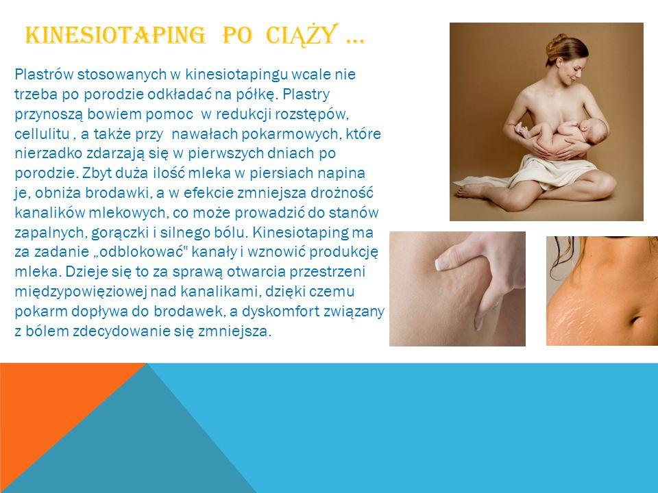 Kinesiotaping po ciąży …