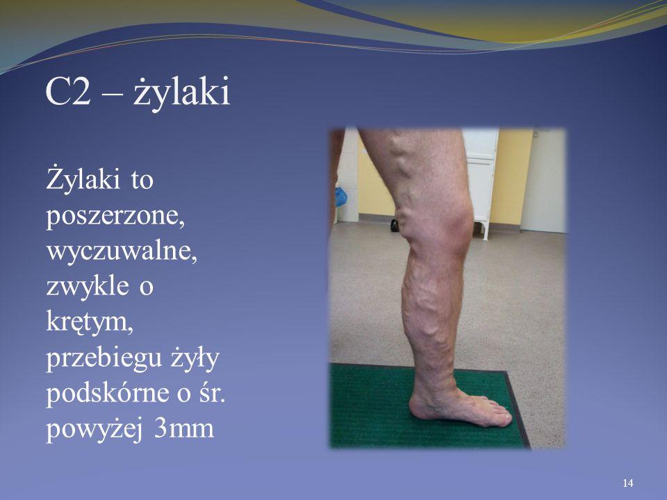 C2 – żylaki Żylaki to poszerzone, wyczuwalne, zwykle o krętym, przebiegu żyły podskórne o śr.