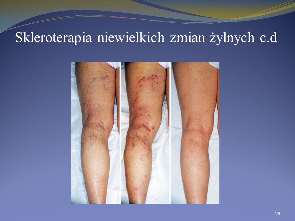 Skleroterapia niewielkich zmian żylnych c.d