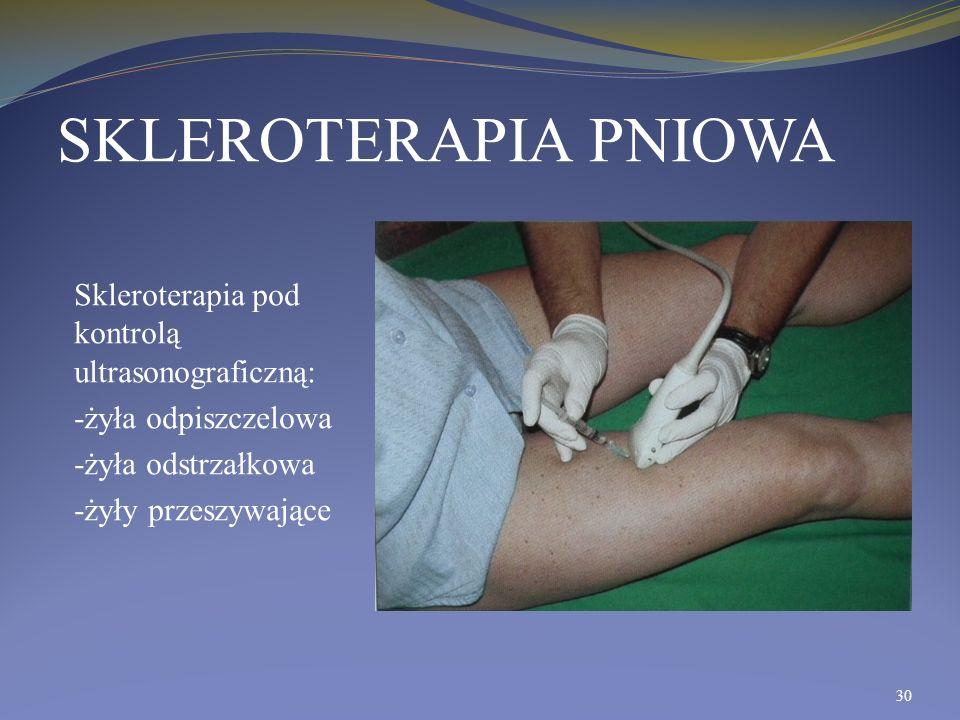 SKLEROTERAPIA PNIOWA Skleroterapia pod kontrolą ultrasonograficzną: