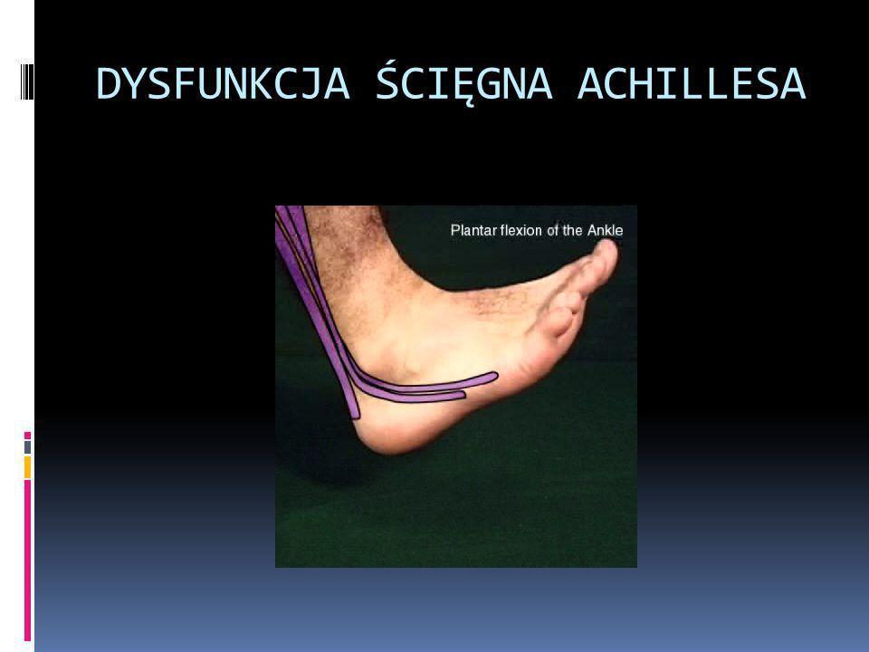 DYSFUNKCJA ŚCIĘGNA ACHILLESA