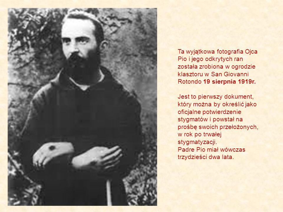 Ta wyjątkowa fotografia Ojca Pio i jego odkrytych ran została zrobiona w ogrodzie klasztoru w San Giovanni Rotondo 19 sierpnia 1919r.