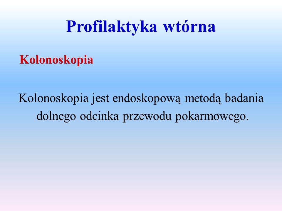 Profilaktyka wtórna Kolonoskopia jest endoskopową metodą badania