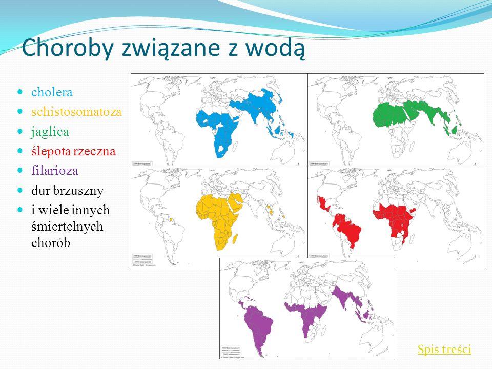 Choroby związane z wodą