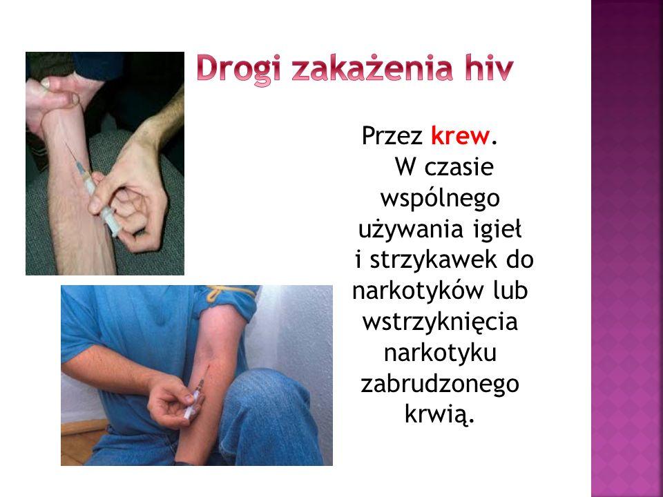 Drogi zakażenia hiv