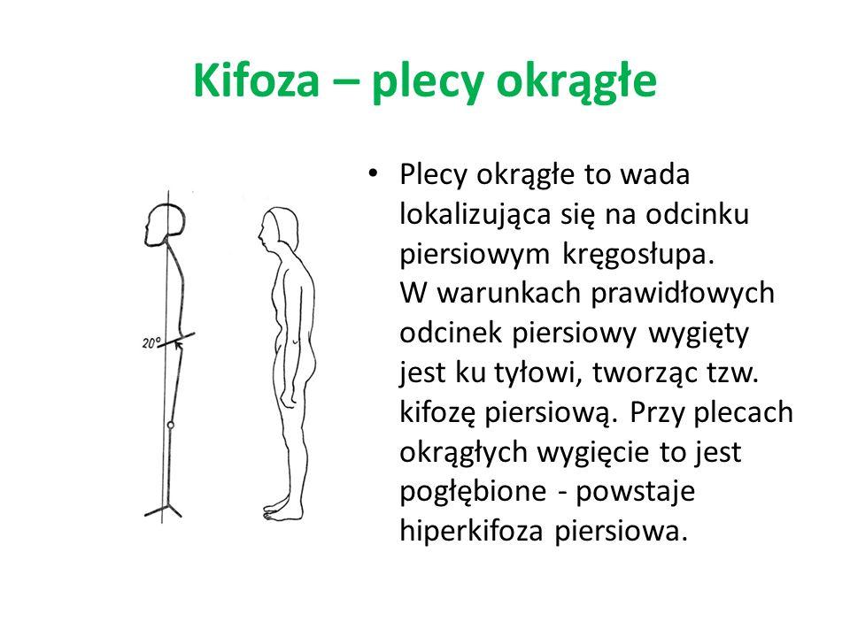 Kifoza – plecy okrągłe