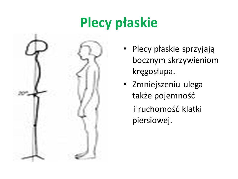 Plecy płaskie Plecy płaskie sprzyjają bocznym skrzywieniom kręgosłupa.