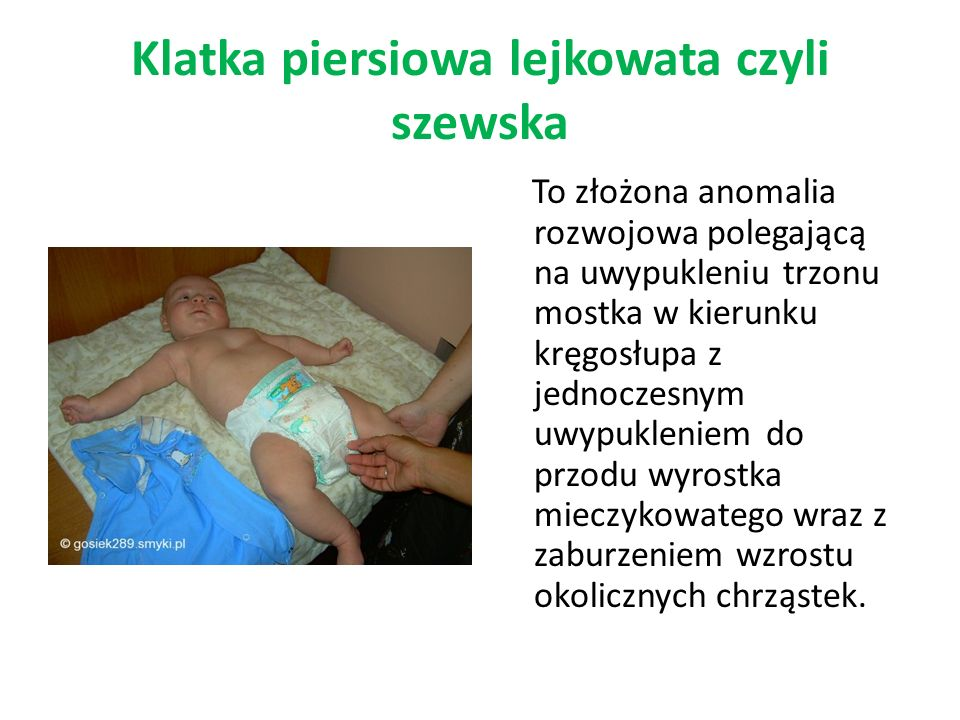 Klatka piersiowa lejkowata czyli szewska