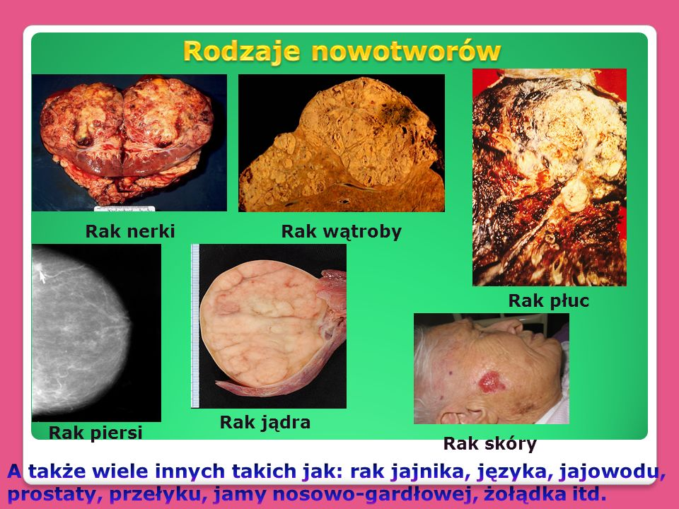 Rodzaje nowotworów Rak nerki. Rak wątroby. Rak płuc. Rak jądra. Rak piersi. Rak skóry.