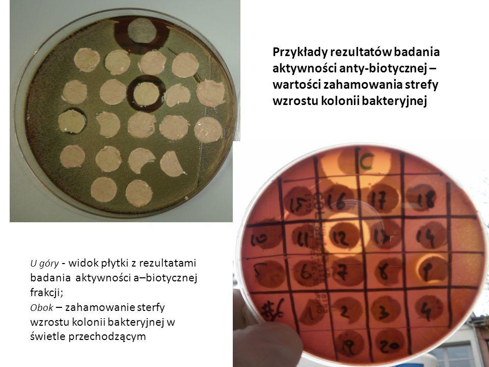 Przykłady rezultatów badania aktywności anty-biotycznej – wartości zahamowania strefy wzrostu kolonii bakteryjnej