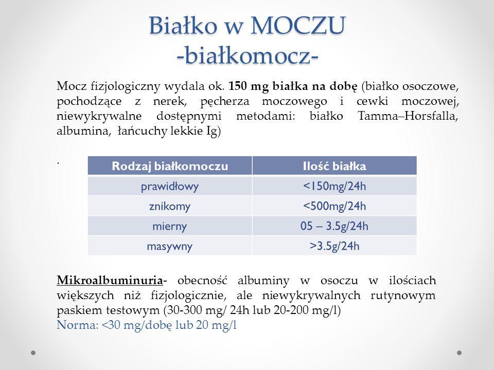 Białko w MOCZU -białkomocz-