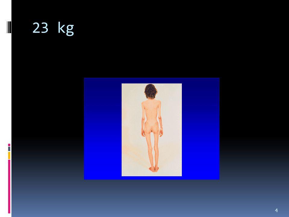 23 kg