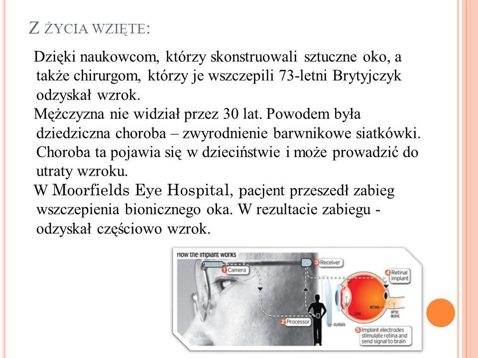 Z życia wzięte: Dzięki naukowcom, którzy skonstruowali sztuczne oko, a także chirurgom, którzy je wszczepili 73-letni Brytyjczyk odzyskał wzrok.