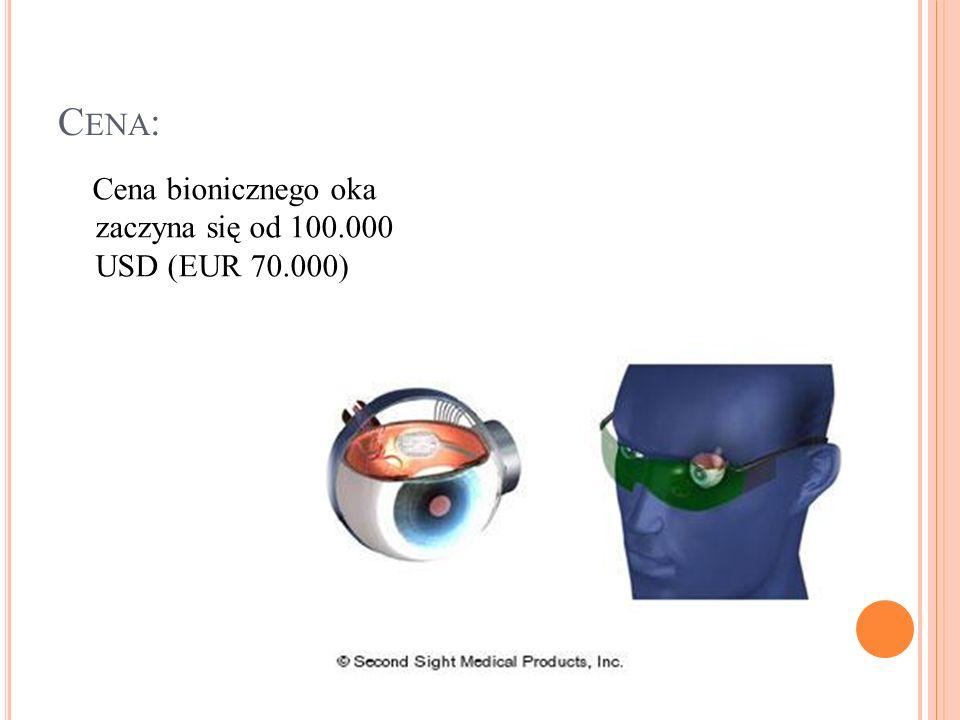 Cena: Cena bionicznego oka zaczyna się od 100.000 USD (EUR 70.000)