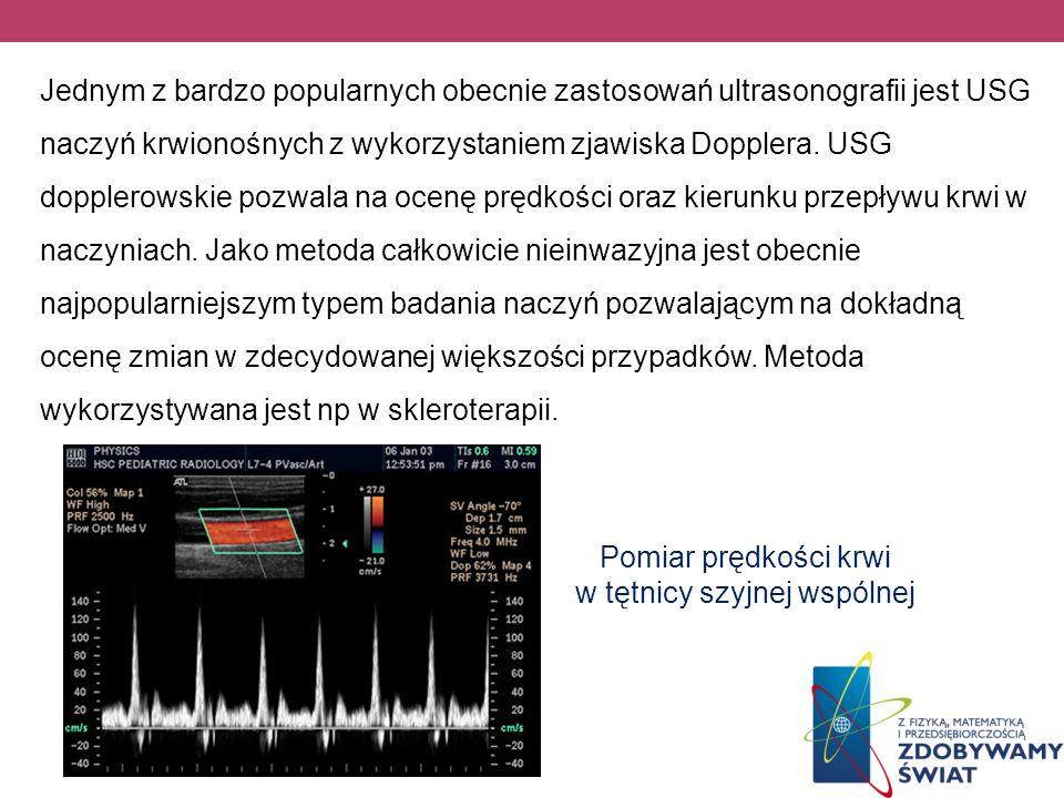 Pomiar prędkości krwi w tętnicy szyjnej wspólnej