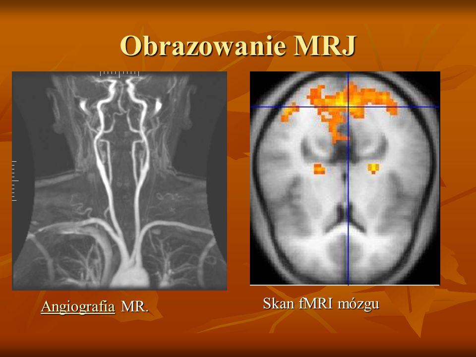 Obrazowanie MRJ Skan fMRI mózgu Angiografia MR.