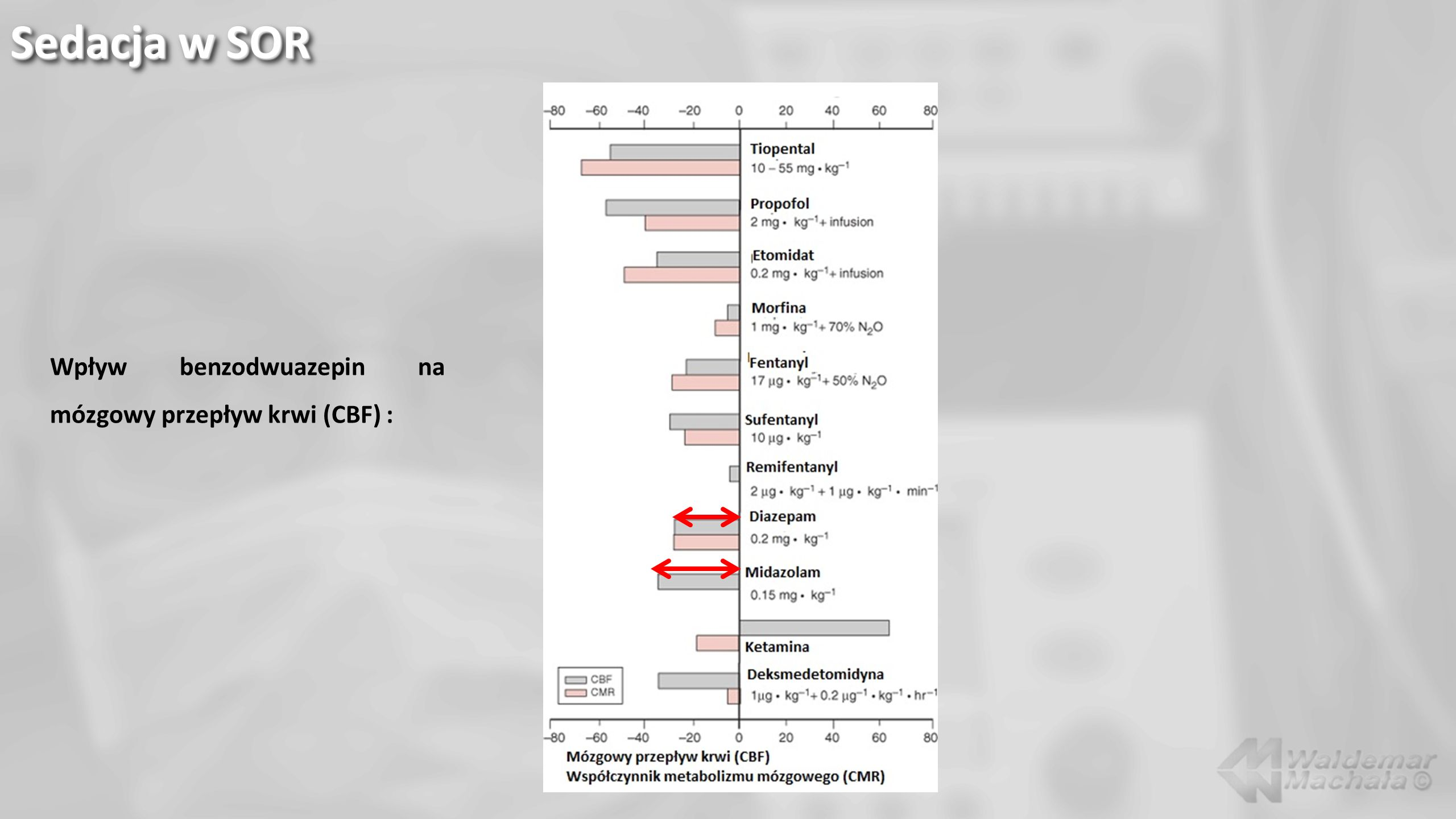 Sedacja w SOR Wpływ benzodwuazepin na mózgowy przepływ krwi (CBF) :