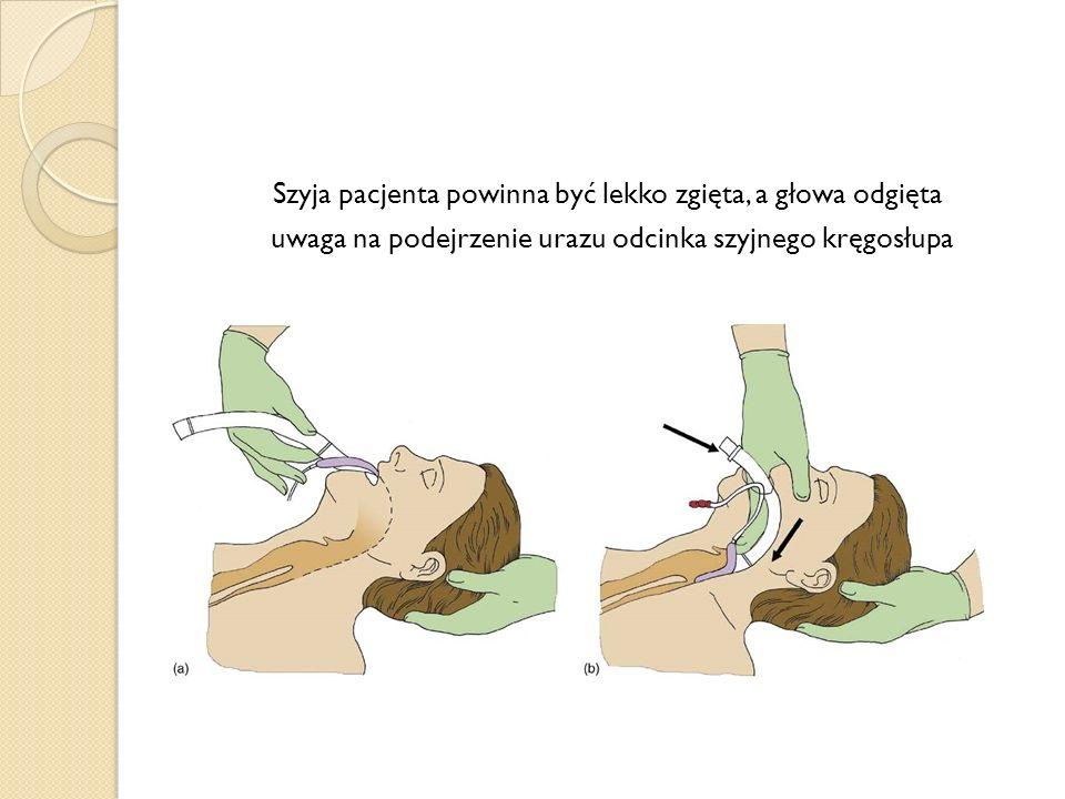 Szyja pacjenta powinna być lekko zgięta, a głowa odgięta uwaga na podejrzenie urazu odcinka szyjnego kręgosłupa