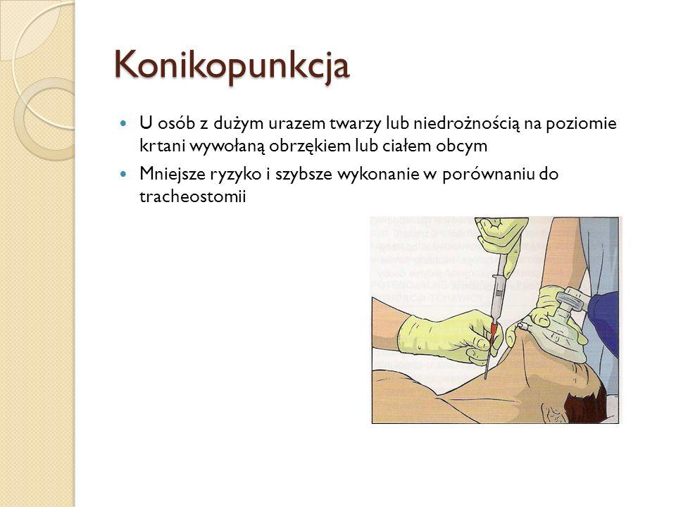 Konikopunkcja U osób z dużym urazem twarzy lub niedrożnością na poziomie krtani wywołaną obrzękiem lub ciałem obcym.