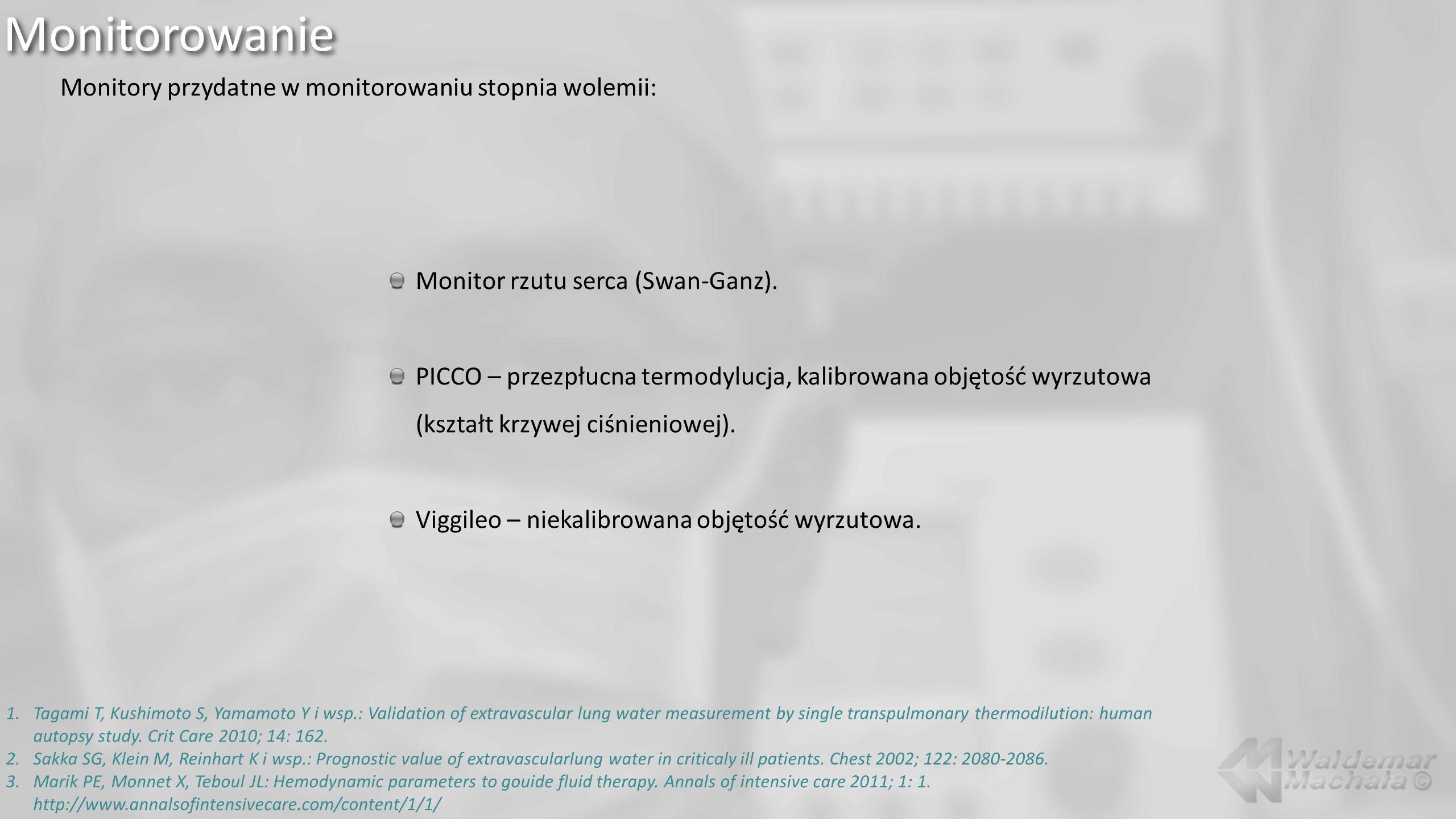 Monitorowanie Monitory przydatne w monitorowaniu stopnia wolemii: