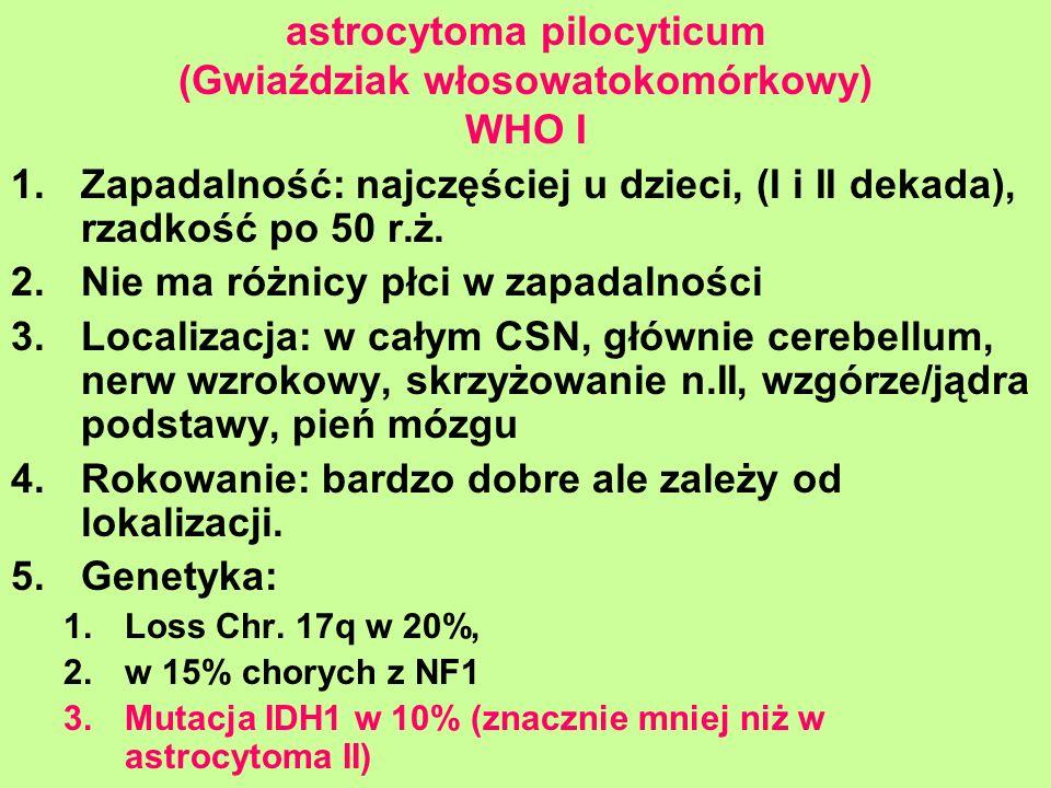 astrocytoma pilocyticum (Gwiaździak włosowatokomórkowy) WHO I