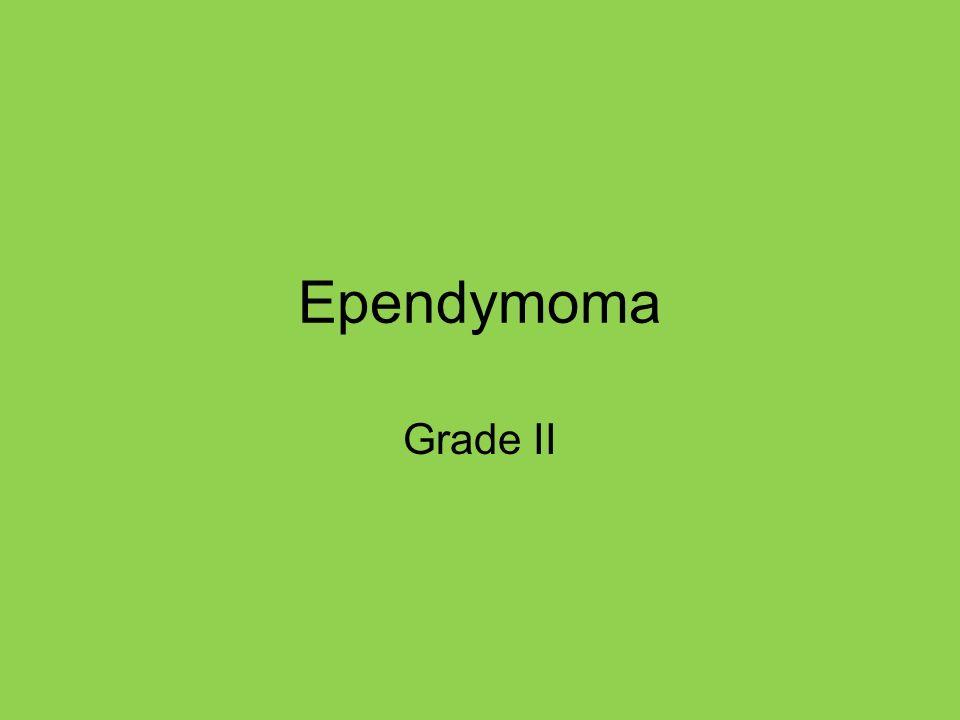 Ependymoma Grade II