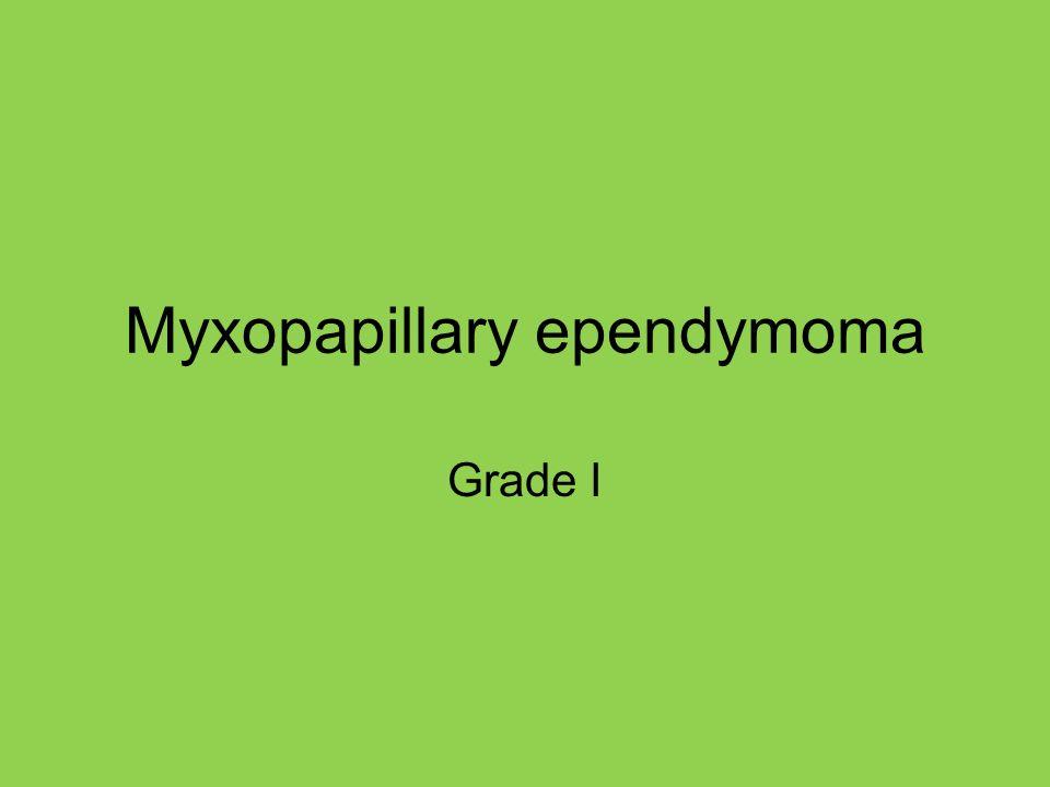 Myxopapillary ependymoma