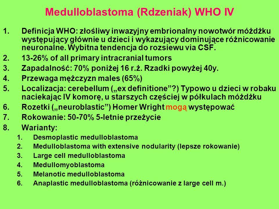 Medulloblastoma (Rdzeniak) WHO IV